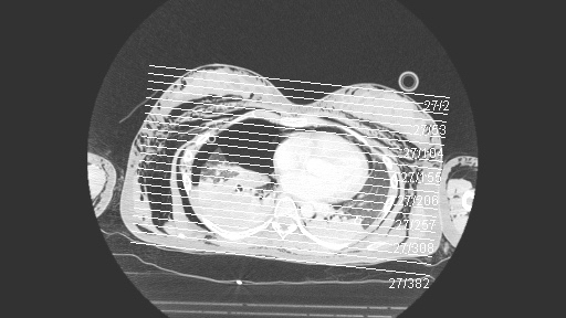 CT Thorax mit Spannungspneu und Hautemphysem